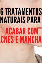 6 TRATAMENTOS NATURAIS PARA ACABAR COM ACNES E MANCHAS,